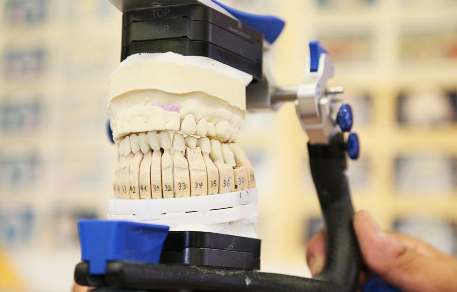 Gebiss - Zahnersatz - Muja Dental - Zahnarzt Kübbeler Freden